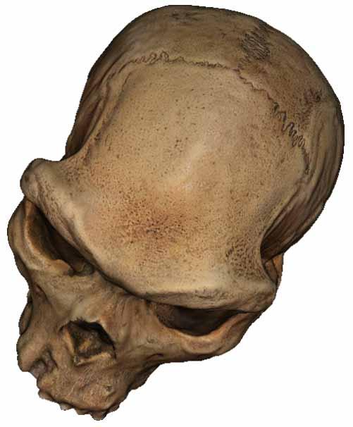 Skull_Tesxtured